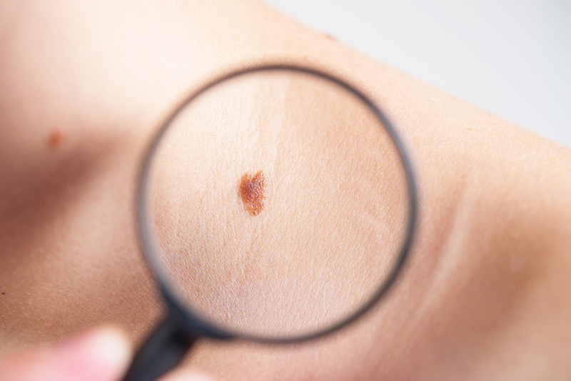 Skin Cancer Diagnosis, Treatment, and Removal