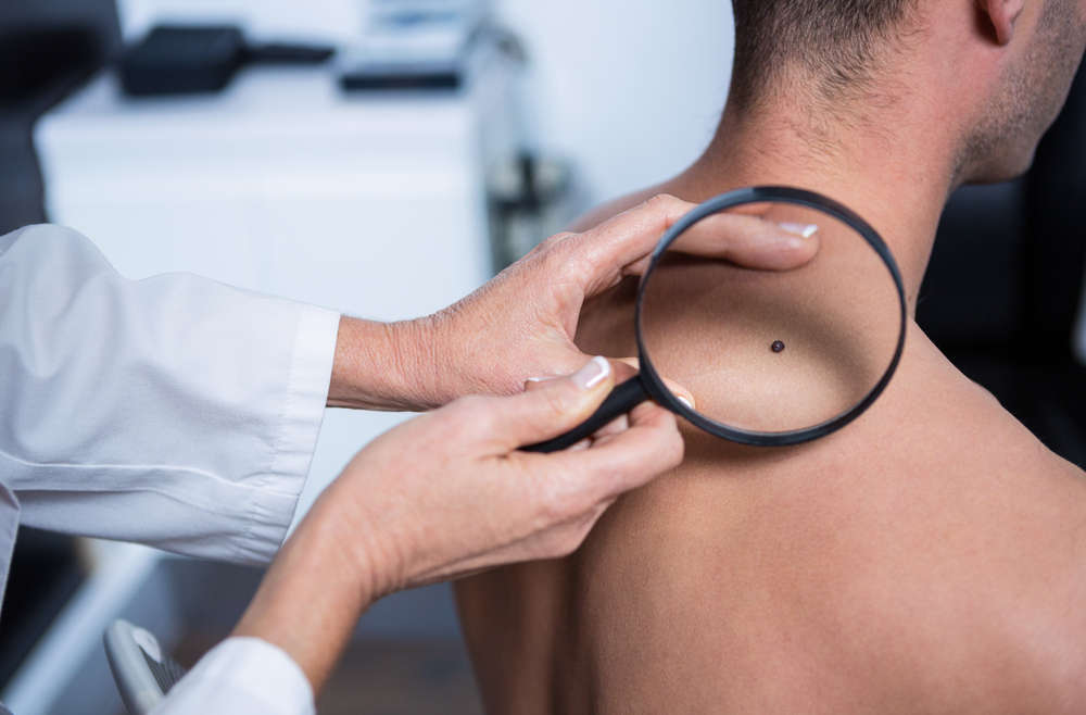 What Does a Skin Cancer Screening Consist Of?