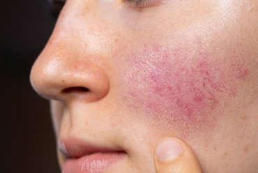 Rosacea Diagnosis and Treatment