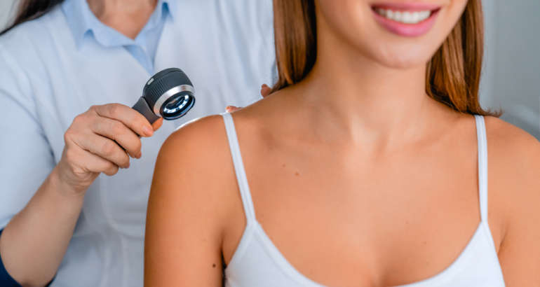 Detecting Skin Cancer in Marietta