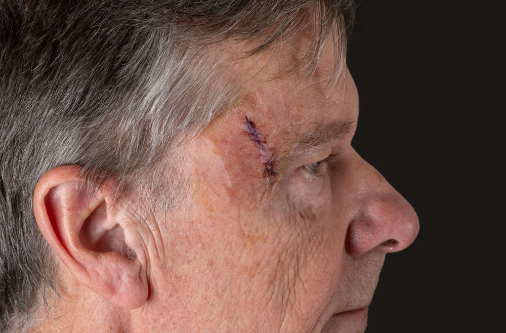 Mohs Surgery: Is It Painful?