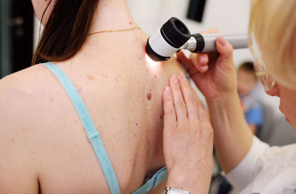 What Are the Early Signs of Skin Cancer?