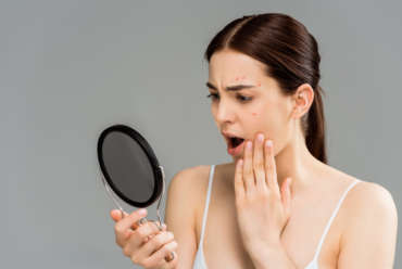 Why Choose Top Acne Dr. in Marietta, Georgia, Dr. Chappell