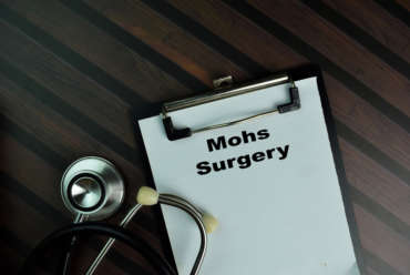 Mohs Surgery FAQ s