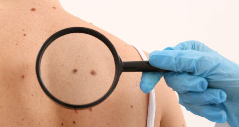 What Kind of Skin Cancer Do I Have?