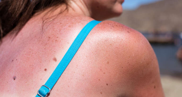 Your Quick Guide to the Most Common Skin Cancers (Basal and Squamous Cell)