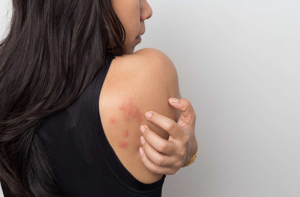 Do I Have a Rash, and When Should I Go to the Dermatologist?