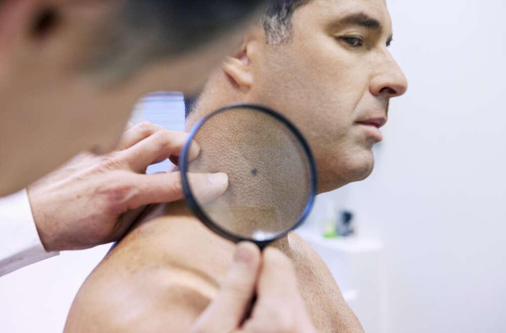 Where to Find Skin Cancer Screenings Near Me